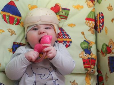 Нужна помощь: шестимесячного Мишу Еникеева спасет операция