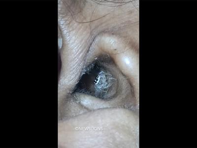 В Индии из уха женщины извлекли большого паука
