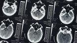 Учёные впервые создали в лаборатории искусственный штамм человеческих прионов.