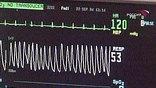 По мнению хирургов, искусственный клапан поможет выиграть время