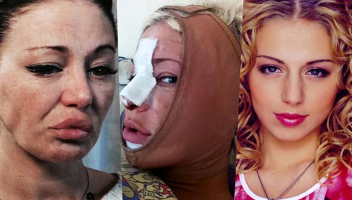Пластический кошмар: хирурги изуродовали российскую певицу до неузнаваемости