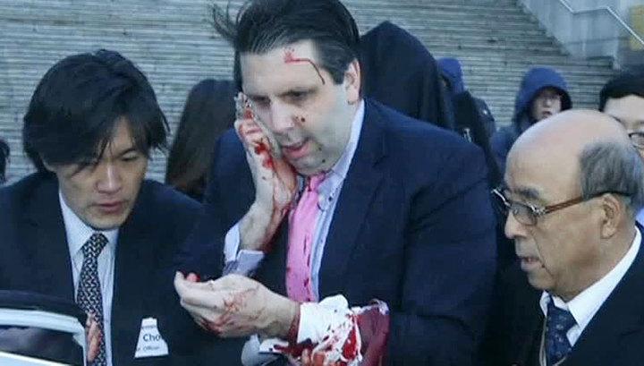 Посол США в Южной Корее получил серьезное ранение