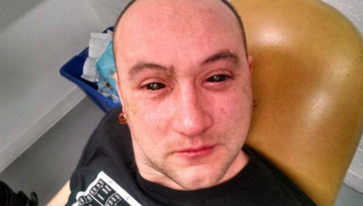 """Доброволец Габриель Лисина после введения """"инъекции ночного видения"""""""