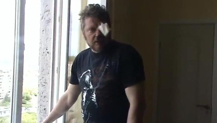 Во Львове журналисту выбили глаз за поддержку ветеранов войны