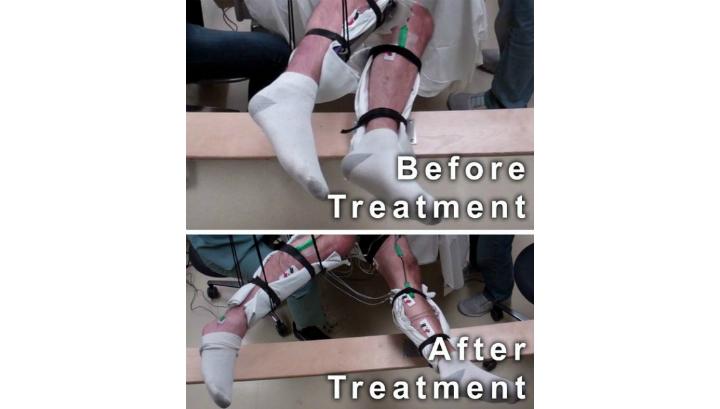 Пять парализованных мужчин, проходивших неинвазивную стимуляцию спинного мозга, смогли вновь шевелить ногами