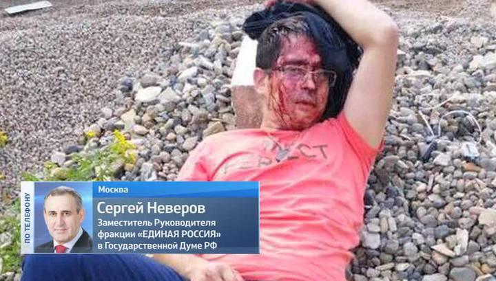 """В Казани трое неизвестных с битами избили активиста """"Молодой гвардии"""""""