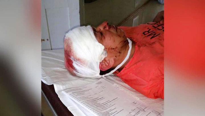 Нападение на Эдуарда Салахутдинова стало поводом для возбуждения уголовного дела