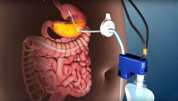 Устройство AspireAssist позволяет сливать часть содержимого желудка.