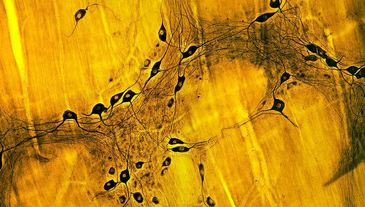 Болезнь Паркинсона может зарождаться в кишечнике, и только затем проникать в мозг