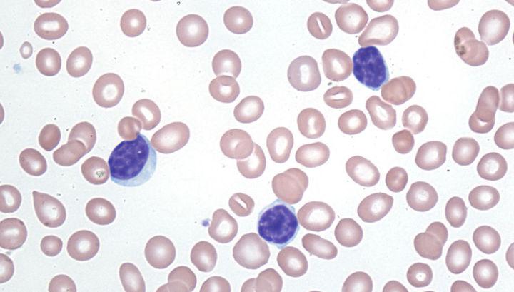 Атипичные лимфоциты при лейкозе (синие).