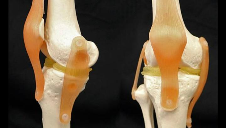 Трансплантация хряща коленного сустава стоимость операции на ноги по замене суставов