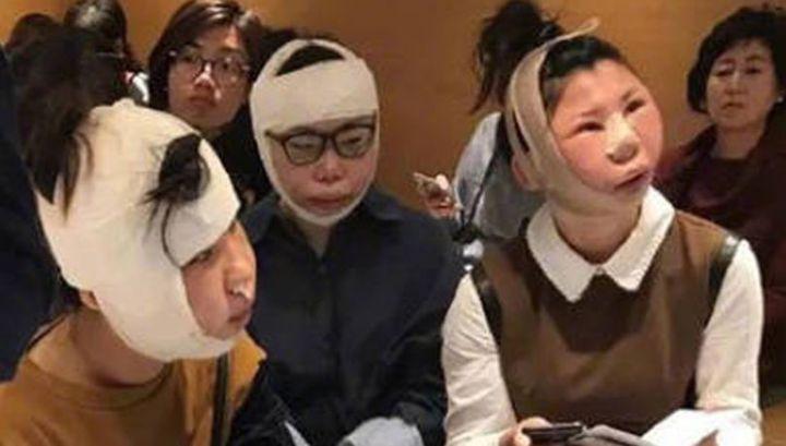 Китаянки не смогли вернуться в страну после пластических операций из-за распухших лиц
