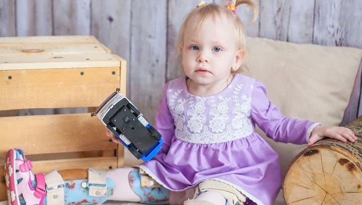 Как живут дети в будущем с врожденным ложным суставом основные анатомические признаки сустава