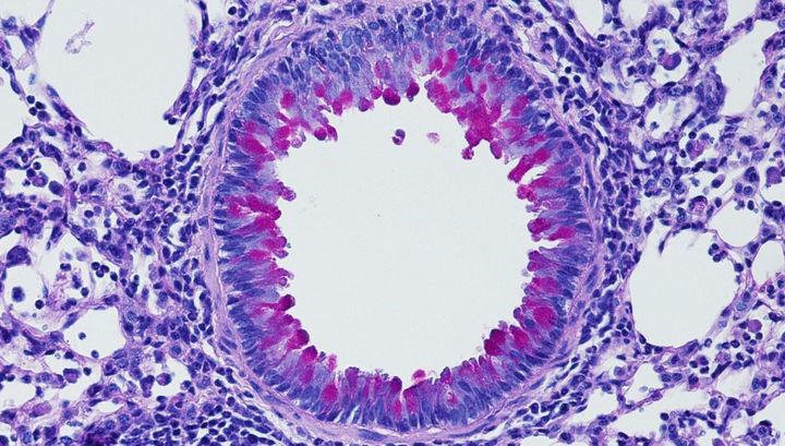 Нервная система контролирует иммунную, чтобы воспаление не становилось хроническим. На микрофотографии виден процесс образования слизи (красно-фиолетовая) в лёгких при инфицировании.