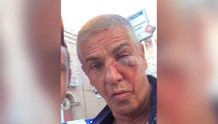 Насери опроверг, что у него была травма головы