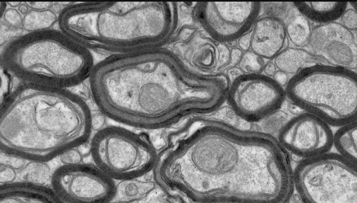 Новый синтетический пептид TDP6 помогает восстановить миелиновые оболочки, повреждённые РС.