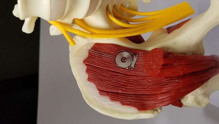 Регулярная электрическая стимуляция помогает восстановить нервную функцию и вернуть мышечный тонус намного быстрее, чем традиционные методы реабилитации.