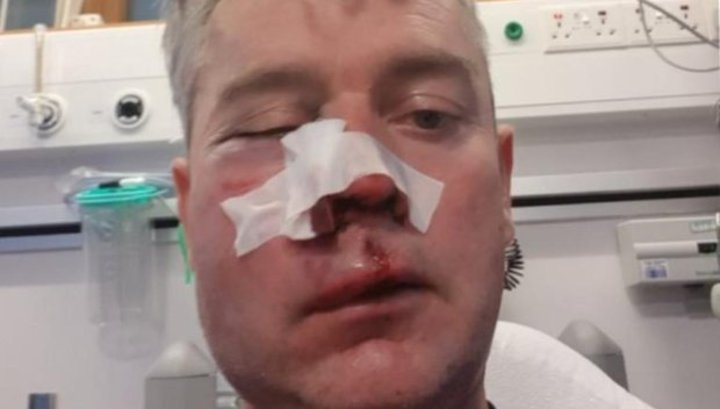 В Ирландии футболисты сильно избили судью после победного матча