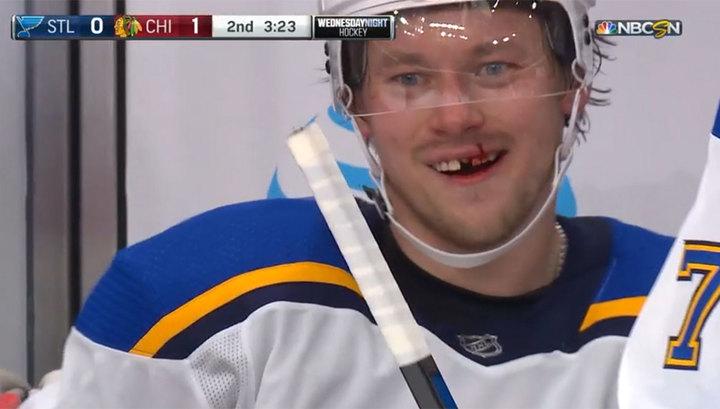 Теперь, как Овечкин: Владимир Тарасенко лишился зуба в матче НХЛ