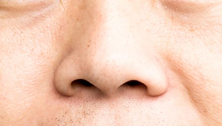 Пять лет неправильных диагнозов: насморк оказался утечкой спинномозговой жидкости
