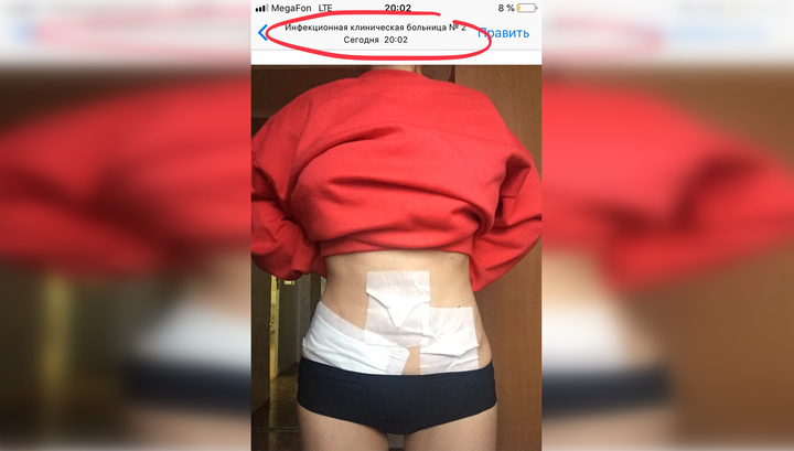 """Сальмонеллез приняли за аппендицит: жертву вендингового автомата разрезали """"просто так"""""""