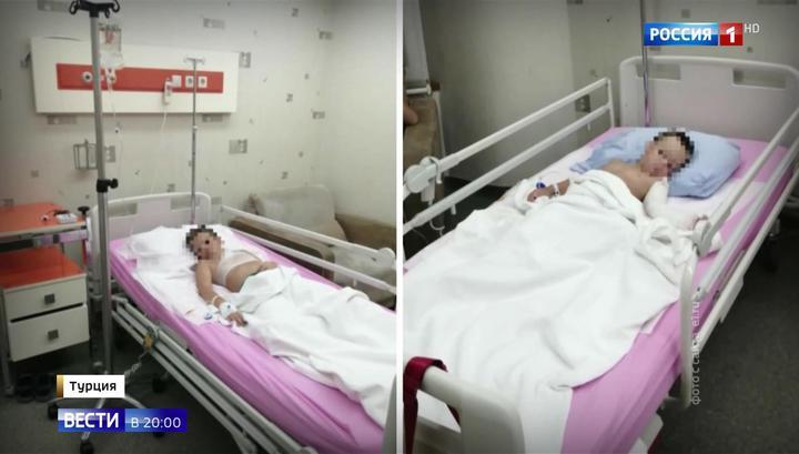 В Екатеринбурге готовы встретить детей, получивших ожоги в Турции