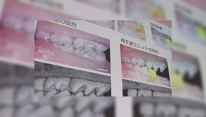 В Японии научились выращивать зубы