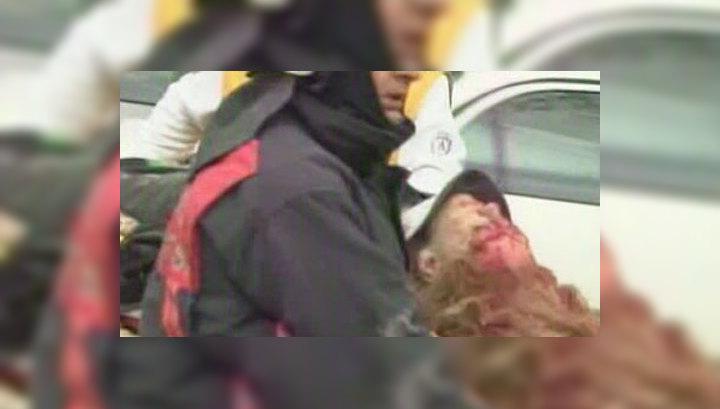 Взрыв у посольства США в Анкаре: погибли два сотрудника службы безопасности