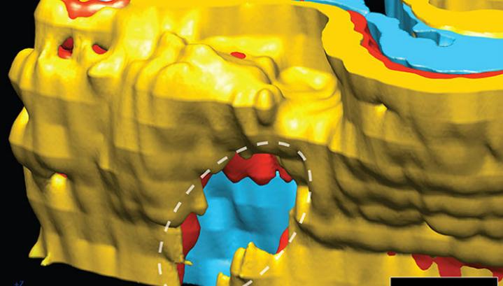 3D-реконструкция очагового нарушения в головном мозге ребёнка-аутиста
