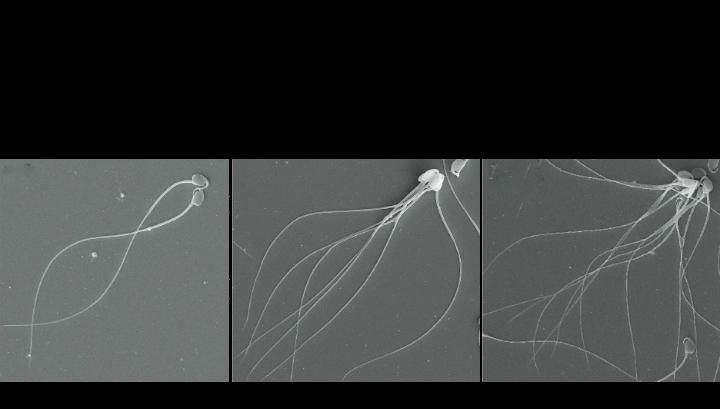Как могут исчезнуть сперматазоиды