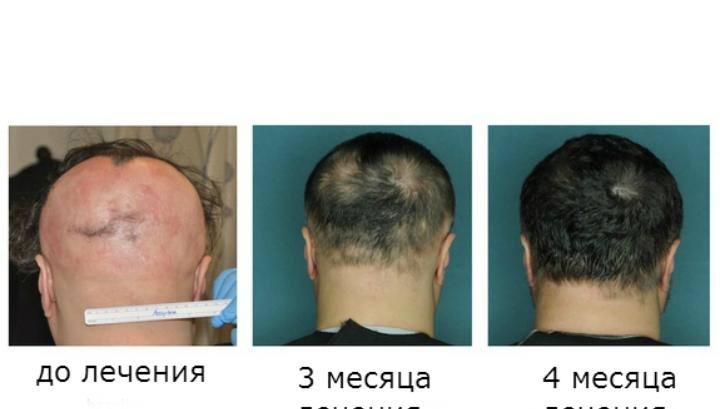 Препараты для роста волос на голове