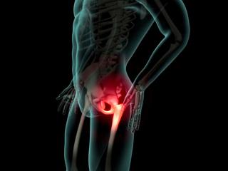 Боли в суставах: тонкости вопроса