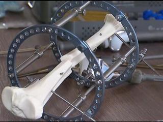 В Москве заработал завод по производству медицинских протезов и имплантов