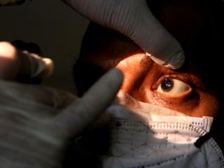 Черная плесень: 150-процентный рост числа заболевших в Индии