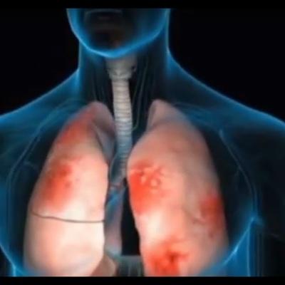 Москвичи за месяц стали более чем на 50% реже болеть пневмонией