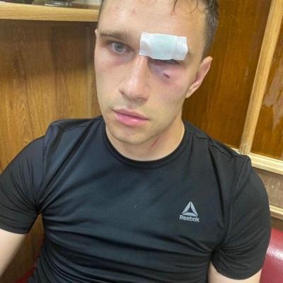 Избитый Широковым футбольный судья обратился в полицию