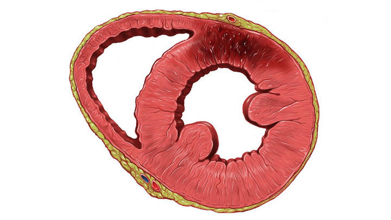 Йодид предотвратит опасные последствия сердечных приступов