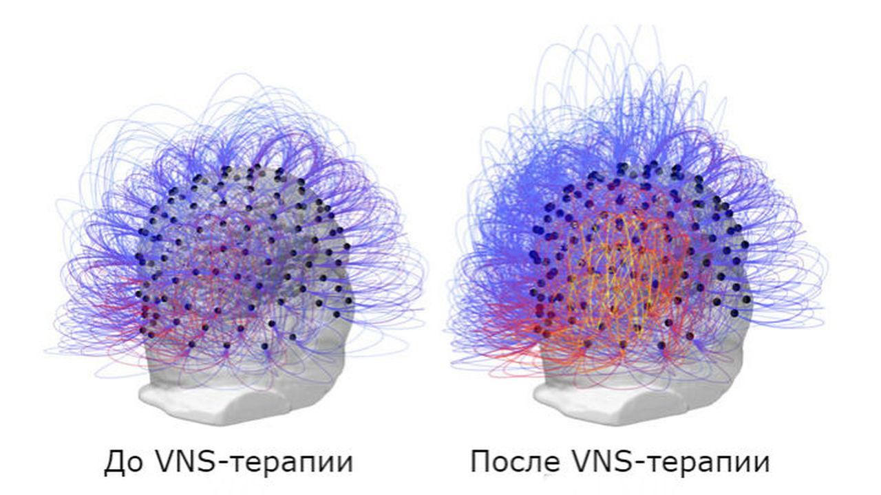 После 15 лет вегетативного состояния сознание пациента пробудила электростимуляция