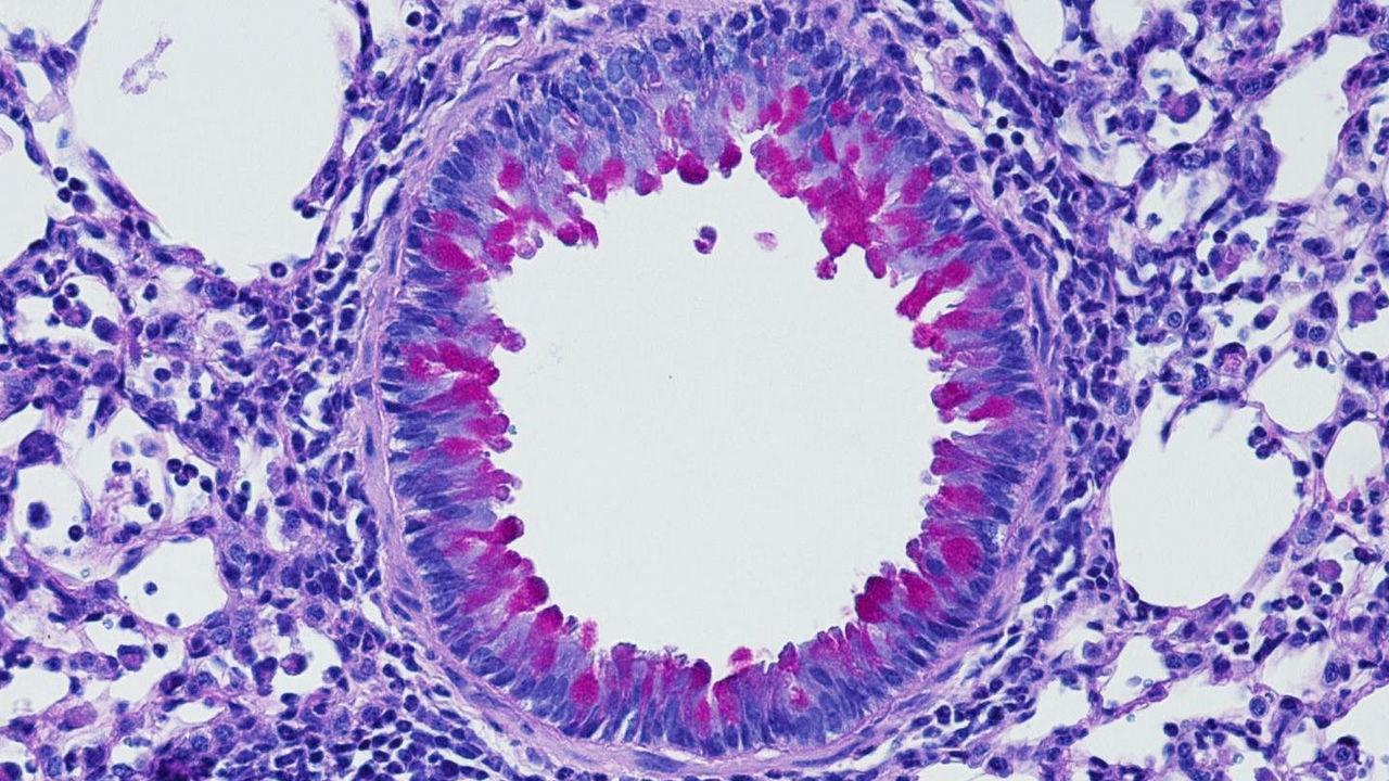 Нервная система не даёт воспалению становиться хроническим