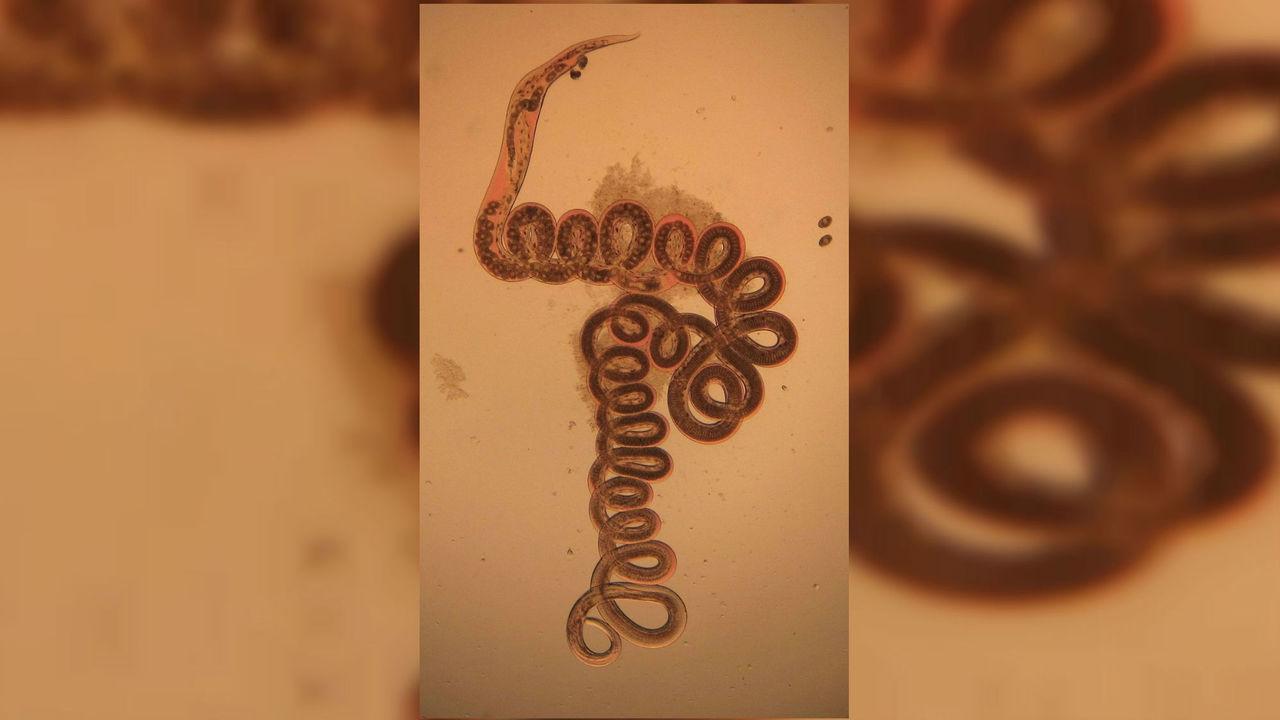От победы над ожирением до лечения астмы: как паразитические черви могут неожиданно помогать людям