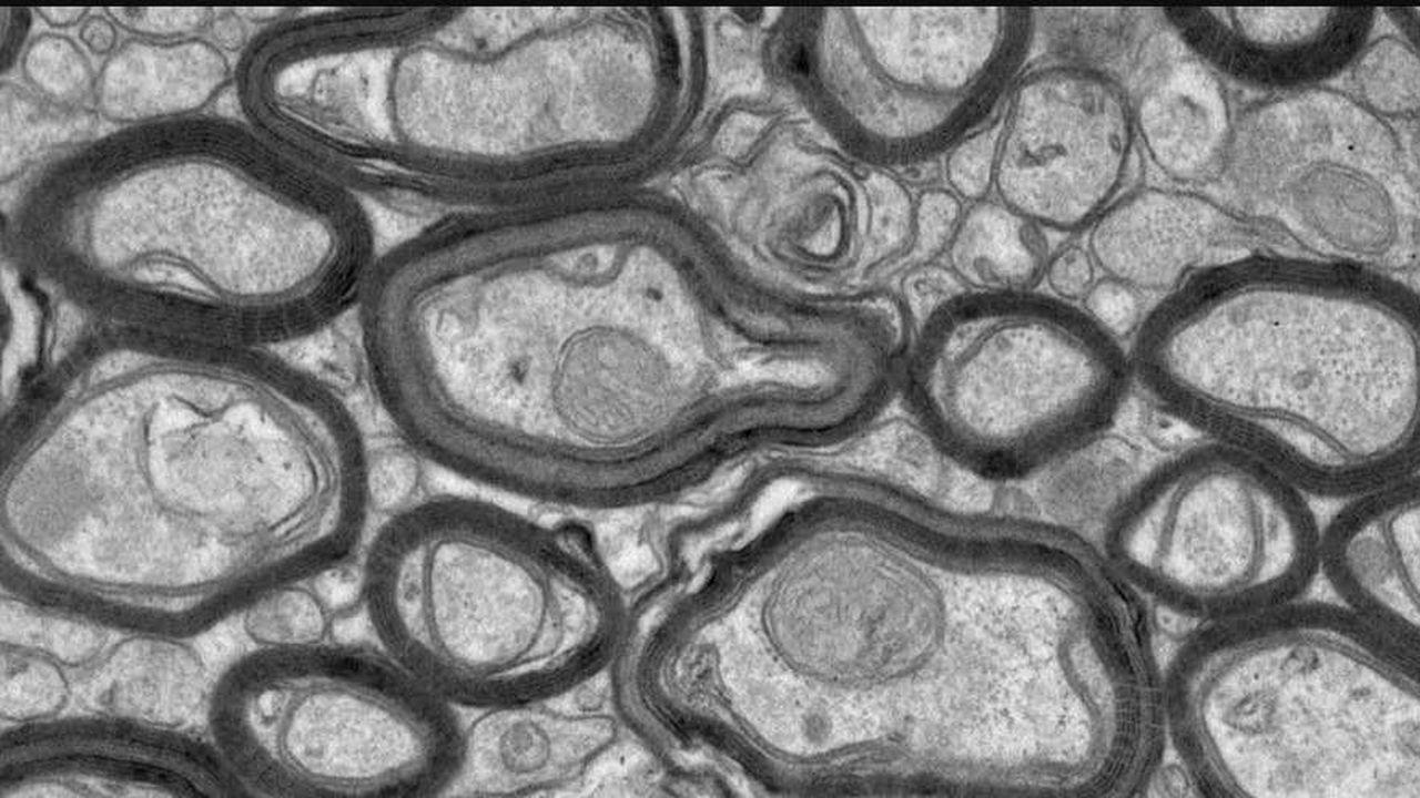 Найден способ восстановления защиты нервных волокон, повреждающейся при рассеянном склерозе