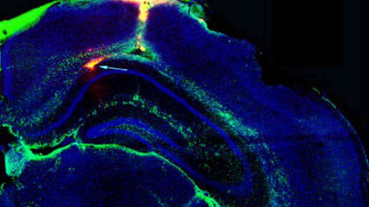 Мозговой имплантат остановил эпилептические припадки у мышей
