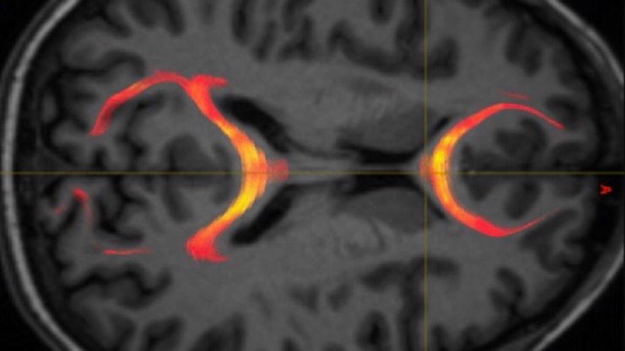 Травмы головы нарушают связь между полушариями мозга