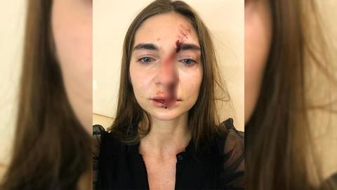 Новосибирскую певицу избили в московском салоне красоты