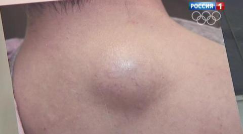 Шишка на губе с внутренней стороны и снаружи: что это, лечение ... | 266x480