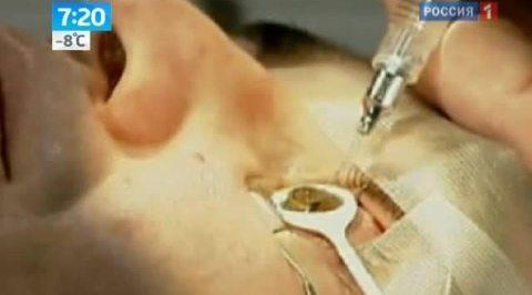 Косметические и лазерные операции по смене цвета глаз