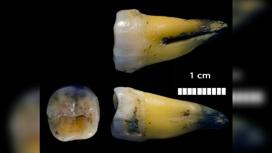 Найденный в пещере Бачо Киро зуб (в трёх проекциях), из которого была извлечена древняя ДНК.