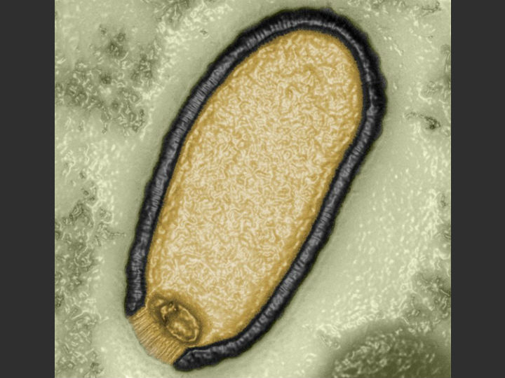 Питовирус, длина которого составляет 1,5 микрометра