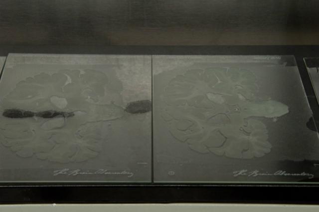 Частицы мозга на стекле