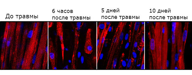 Разрушение и последующее восстановление биоинженерных мышечных волокон
